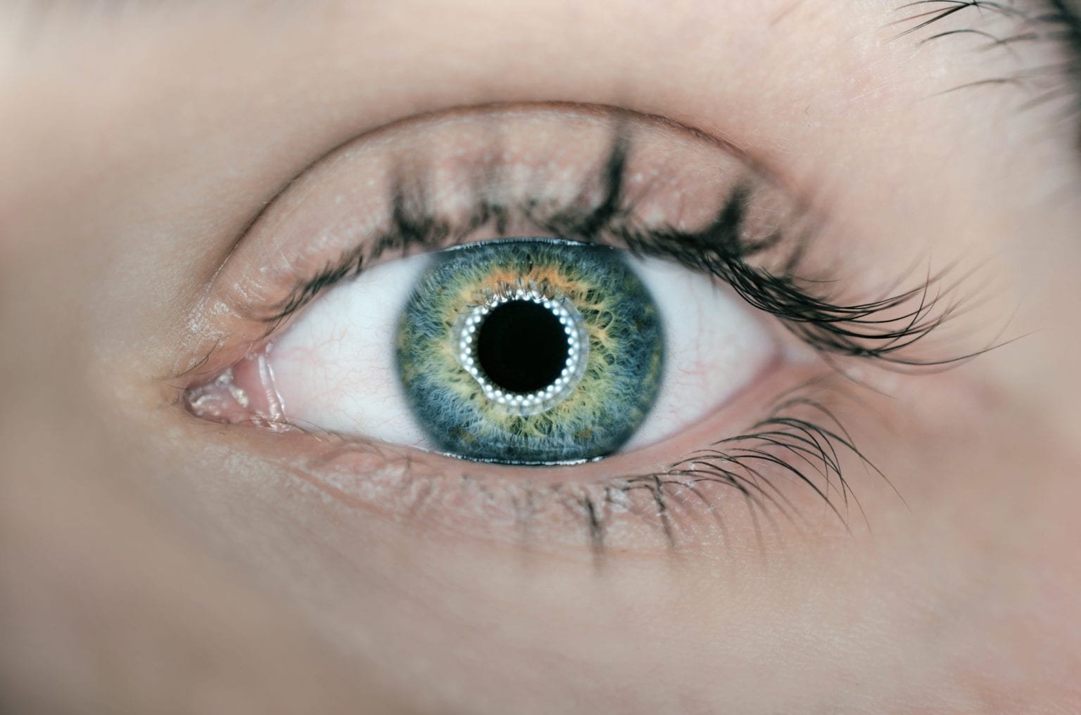 SIGNS, SYMPTOMS, AND CAUSES OF CATARACTS